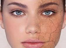 درباره پوست های خشک